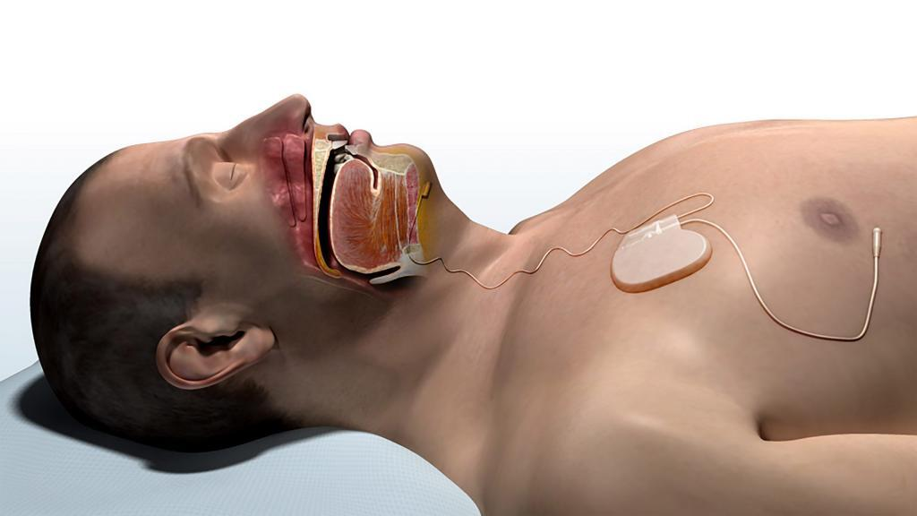 Inspire Normal Breathing with Inspire original 1024x576 - Inspire Upper Airway Stimulation Not Working for Your Sleep Apnea?