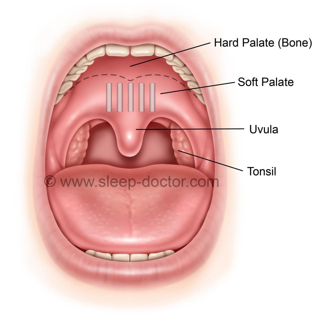 palate surgery for snoring