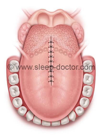 MLG4 - Midline Glossectomy and Submucosal Lingualplasty