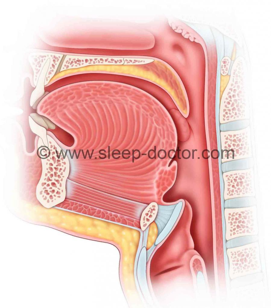 Epiglottis Surgery - Sleep Doctor Epiglottis