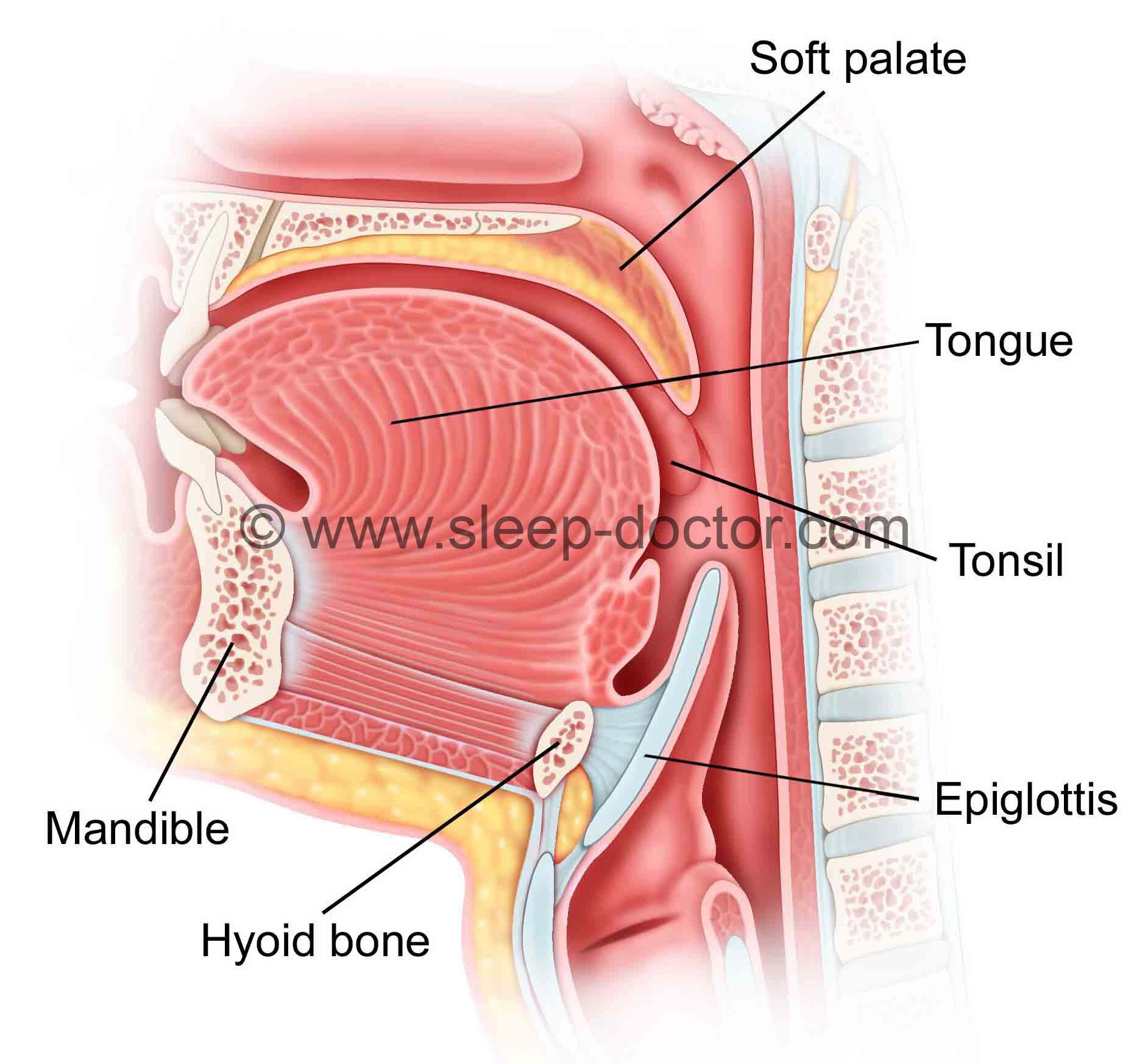 Epiglottis Surgery - Sleep Doctor