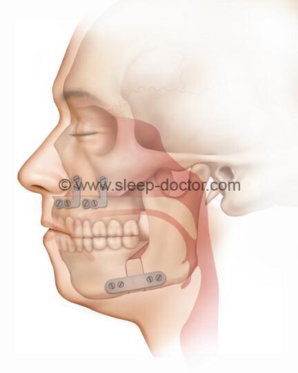 maxillomandibular advancement 02 - Maxillomandibular Advancement